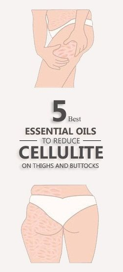 5 Best Essential Oils To Reduce Cellulite